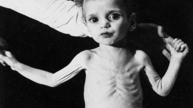 Chăm sóc trẻ còi xương, suy dinh dưỡng – bệnh hơn 1/4 số trẻ em Việt Nam mắc phải