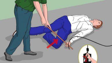 Kỹ năng sơ cứu người bị bỏng và những sai lầm cần tránh
